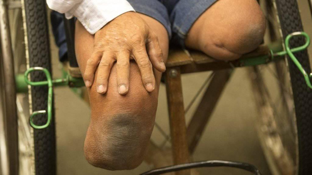 Opfer von Minen werden meist schwer verletzt oder getötet (Archiv).
