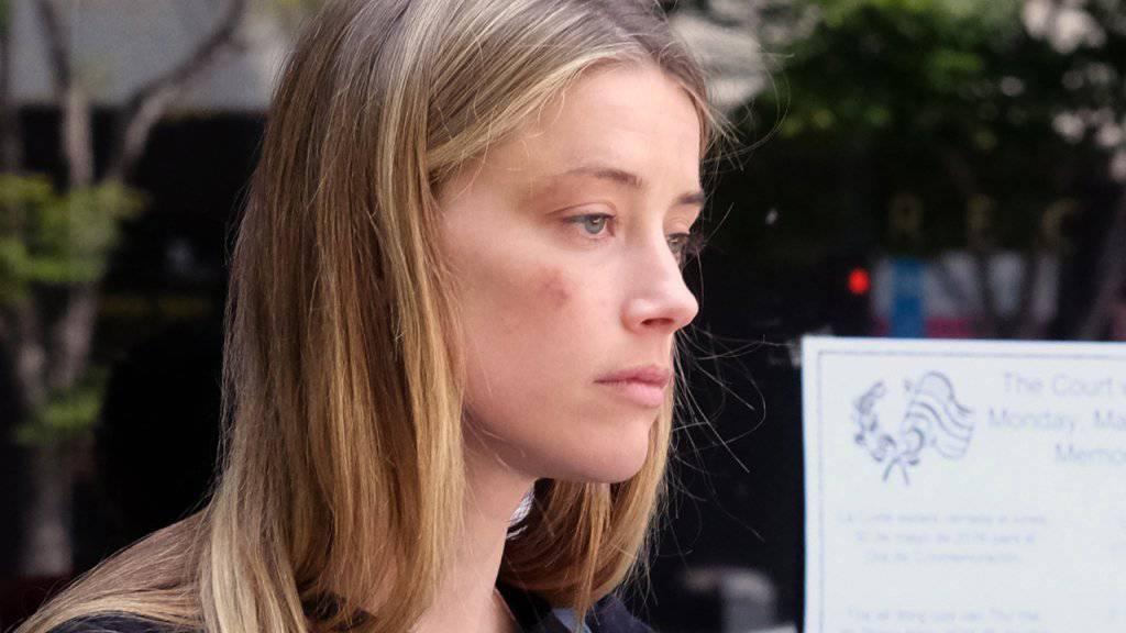 Amber Heard mit dem Bluterguss, den ihr Gatte Johnny Depp angeblich verschuldet hat. Nun ist bekanntgeworden, dass sie selber eine gewalttätige Vorgeschichte hat: Sie wurde 2009 festgenommen, weil sie ihre damalige Liebhaberin Tasya van Ree angegriffen hat. (Archivbild)