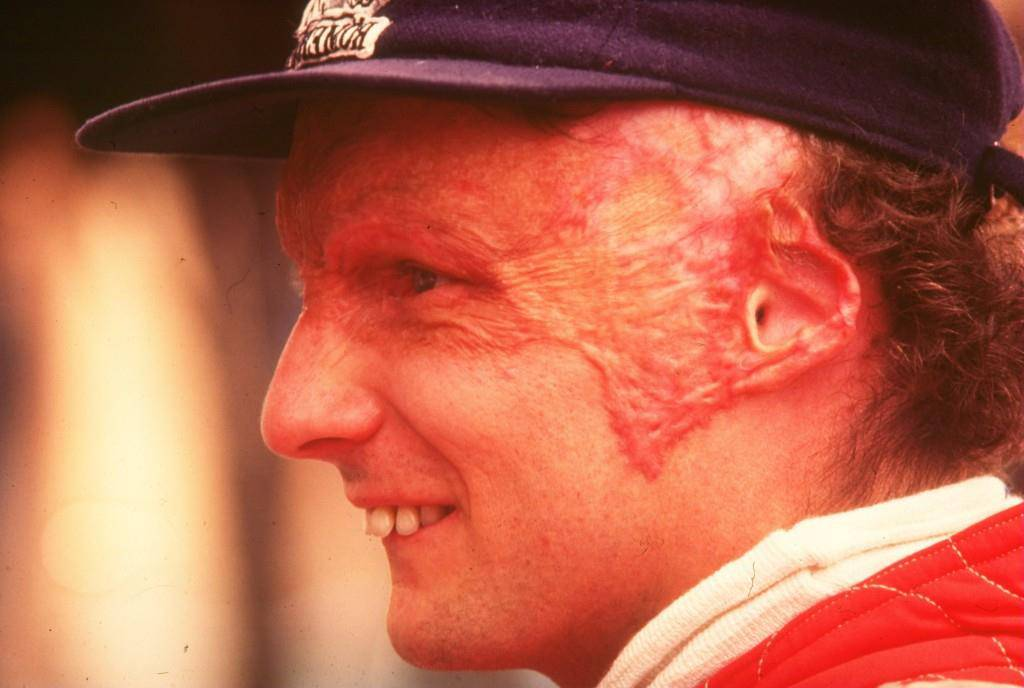 Niki Lauda (© Getty Images)