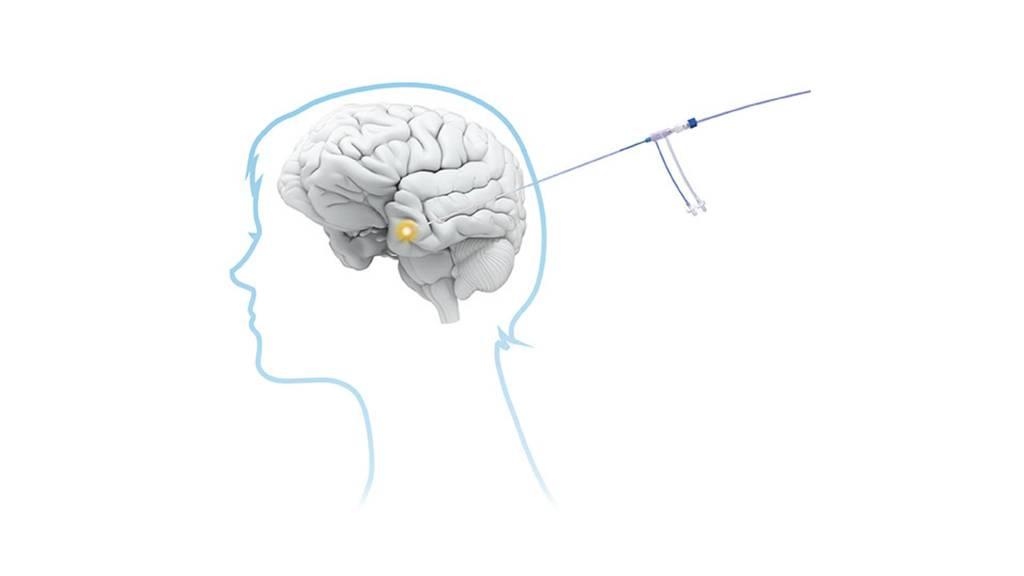 Stereotaktische Laserablation: Präzise und schonende Hirnoperation
