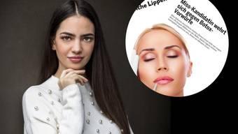 Botox-Vorwurf auf Instagram