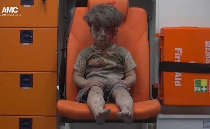 Ein Arzt liess das Foto dem britischen Telegraph-Korrespondenten Raf Sanchez zukommen, der es auf Twitter in die Welt hinausschickte, wo es vom Bürgerkriegsschrecken in Syrien erzählte.