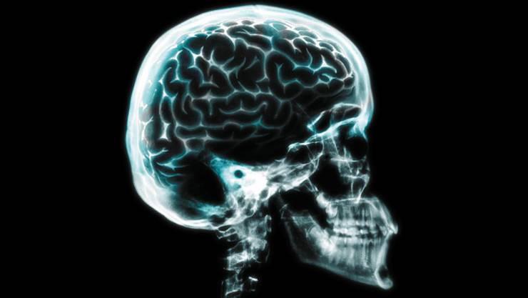 Kampfzone Gehirn. Die Forschung war bis jetzt gegen die Alzheimer-Krankheit nicht sehr erfolgreich.