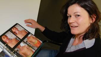 Alexandra Stahel zeigt Bilder von Merilyn: «Die Brandnarben sind hässlich.»
