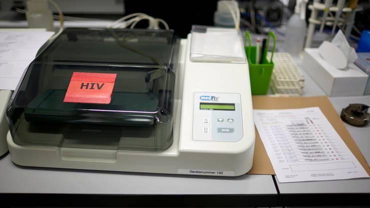 Während des Lockdowns wurden in der Schweiz weniger HIV-Tests durchgeführt. (Symbolbild)