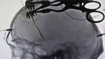 Eine Röntgenaufnahme von implantierten Elektroden (Archiv)