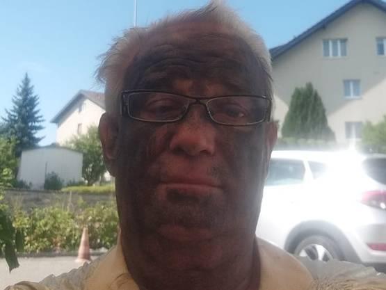 Auf Facebook postete Markus Heim ein Bild, das ihn mit schwarzer Farbe im Gesicht zeigt.