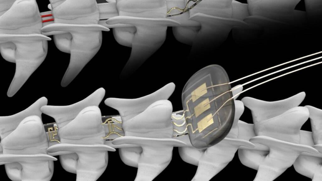 An der Lausanner EPFL wurde ein Implantat entwickelt, mit dem via Bluetooth die Aktivität von Nervenzellen im Rückenmark gesteuert werden kann (Pressebild).
