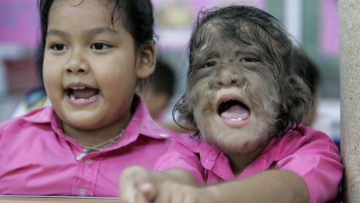 Hypertrichose bezeichnet eine verstärkte Haarbewachsung irgendwo am Körper. (Im Bild: Ein thailändisches Schulmädchen aus dem Jahr 2006, das am Werwolf-Syndrom leidet)