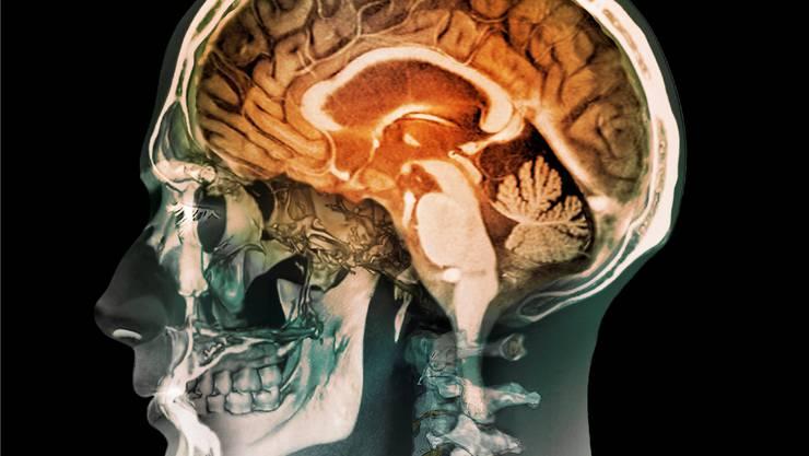 Das Portal will einen umfangreichen Überblick über die Gehirnleistung der Schweizer geben.