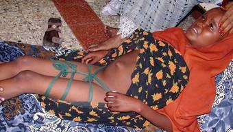 Ein neunjähriges somalisches Mädchen nach der Beschneidung (Archiv)