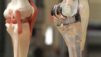 Künstliches Kniegelenk neben nachgebildetem menschlichem Gelenk