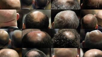 Neue Erkenntnisse im Kampf gegen unfreiwillige Glatzen (Symbolbild)