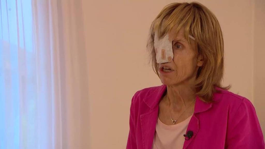 Lifestyle: Susi Schildknecht verlor durch den Krebs ihr halbes Gesicht