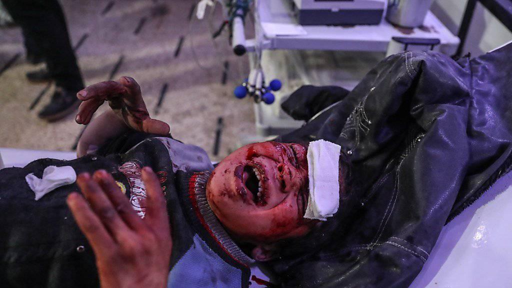 Ein verletztes Kind im Spital von Ost-Ghuta nach einem Angriff von syrischen Regierungstruppen auf die von Rebellen belagerte Stadt.