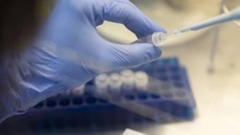 Es gibt die Antikörpertests aber sie sind noch nicht zertifiziert und deshalb noch nicht für die breite Masse zugänglich. (Bild: Keystone)