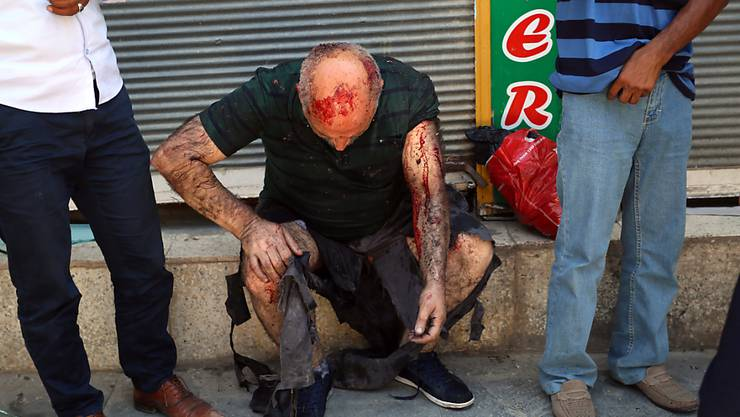 Ein Verletzter in Suruc wartet auf medizinische Hilfe