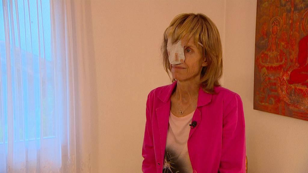 Susi Schildknecht verlor durch den Krebs ihr halbes Gesicht