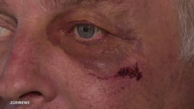 Vom Einbrecher spitalreif geschlagen