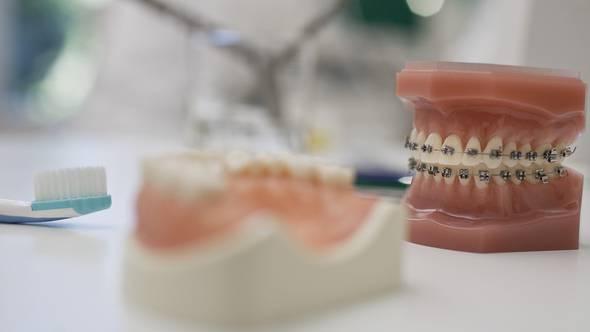 Für die Zahnarztkosten muss die Versicherung aufkommen
