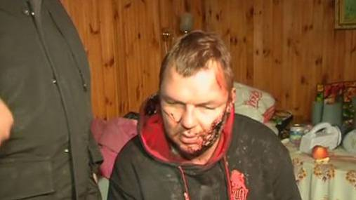 Ohr abgeschnitten, gefolteert: Regierungskritiker Dmitri Bulatow wurde von Entführern arg zugerichtet.
