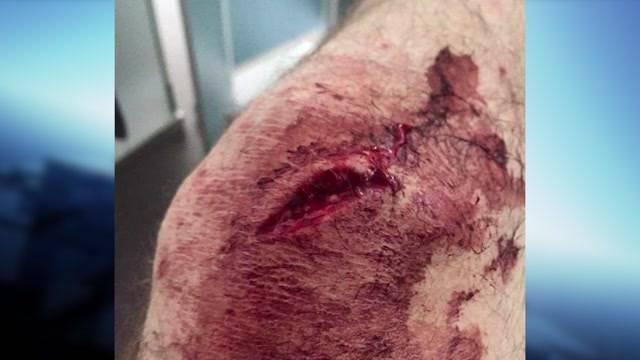 Blutiger Wildsau-Angriff auf Treiber