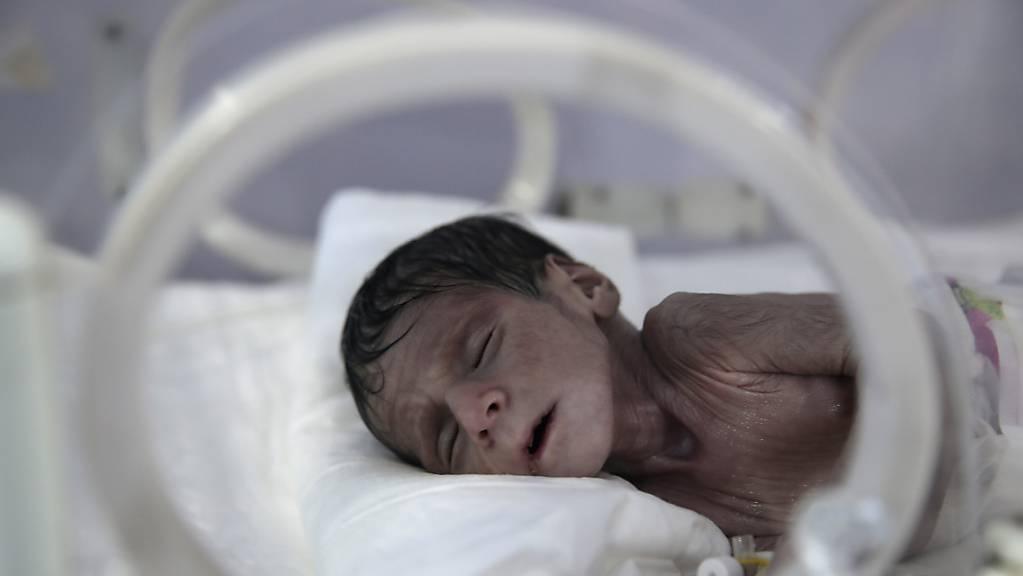 Ein unterernährtes Neugeborenes liegt in einem Inkubator im internationalen Krankenhaus UniMax. Nach Angaben der Vereinten Nationen stehen im Jemen fast 400 000 Kinder vor dem Hungertod. Rund 20 Millionen Menschen brauchten Hilfe, sagte der UN-Koordinator im Jemen, David Gressly, am Montag in Genf.