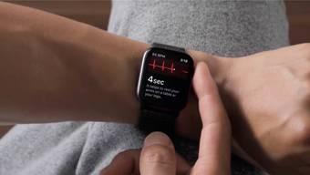Die neuste Apple Watch erkennt Herzrhythmusstörungen.