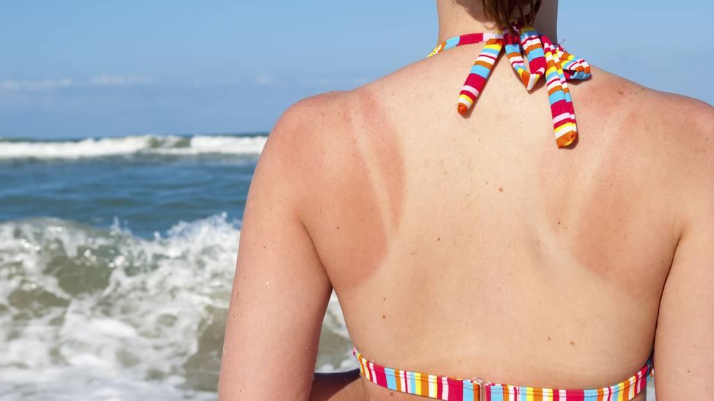 Was hilft am besten gegen Sonnenbrand?