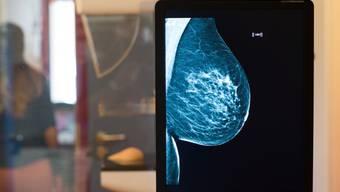 Sensible Daten aus Mammographie-Screenings oder anderen medizinischen Untersuchungen sind auf ungeschützten Servern gelandet und damit frei zugänglich. (Archivbild)