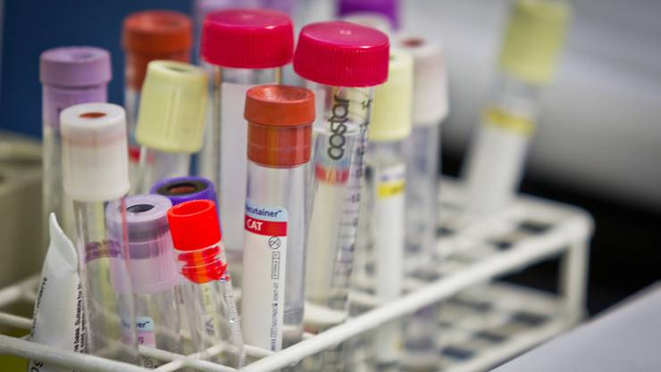 Prostatakrebs soll schon bald früher erkennbar sein – dank Genforschung im Kantonsspital Aarau.