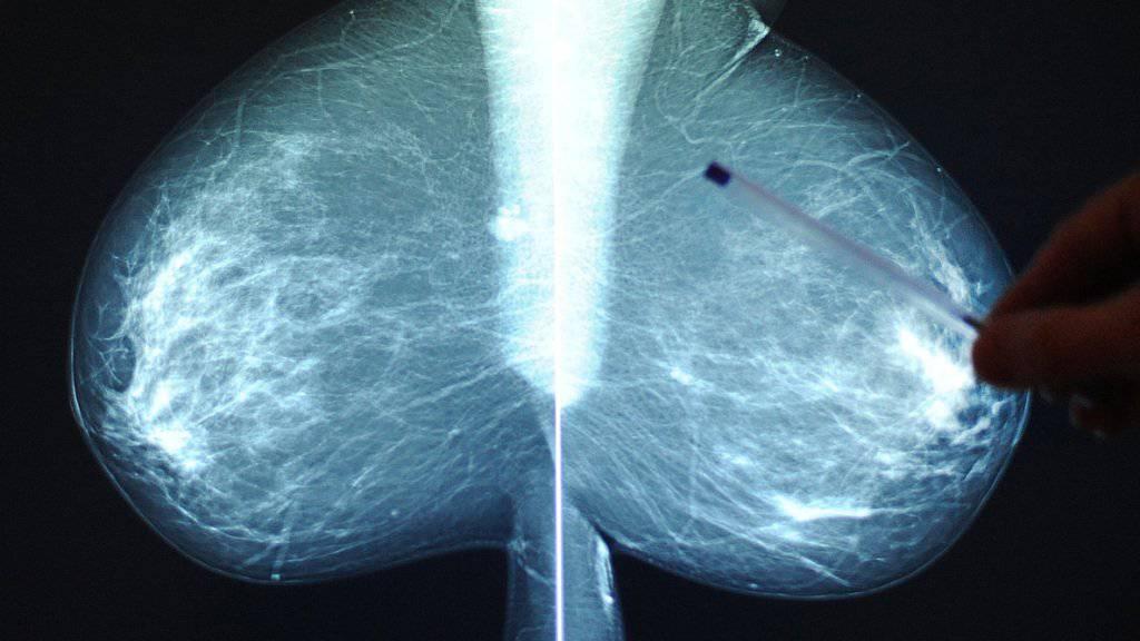 Die Röntgenaufnahme der Brust wird beim Mammografie-Screening von zwei Fachpersonen unabhängig geprüft. (Symbolbild)