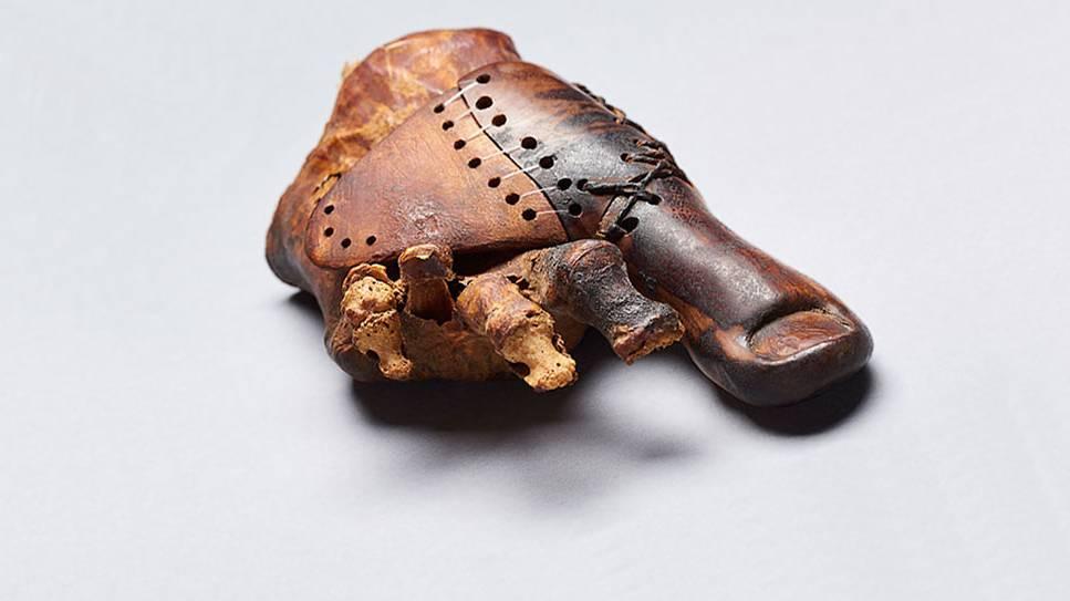 3000 Johr alti Zecheprothese