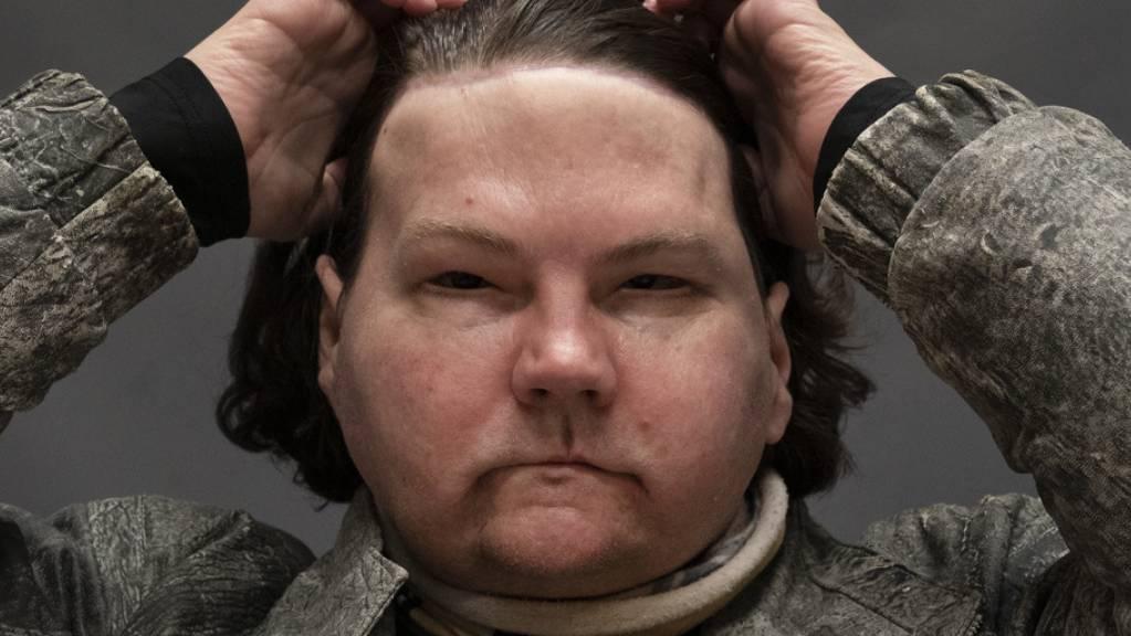 Joe DiMeos Gesicht war nach einem Brandunfall nur noch eine Ansammlung von Narben und seine verklumpten Hände waren nicht mehr zu gebrauchen. Plastische Chirurgen in New York haben ihm das Gesicht und die Hände eines Spenders transplantiert.