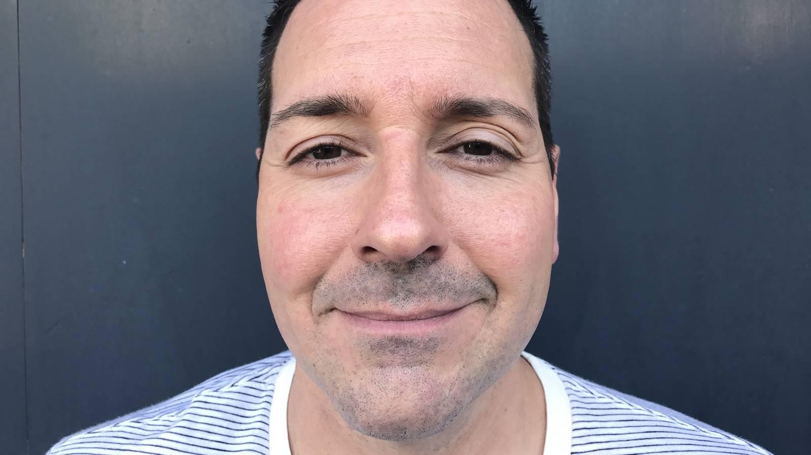 Kurz vor der Behandlung mit Botox und Hyaloronsäure. (© Radio Argovia)