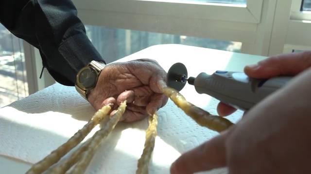 Längste Fingernägel der Welt sind abgeschnitten