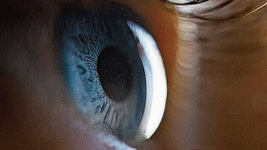 Ort der Behandlung ist der glasigen Raum vor der Iris.