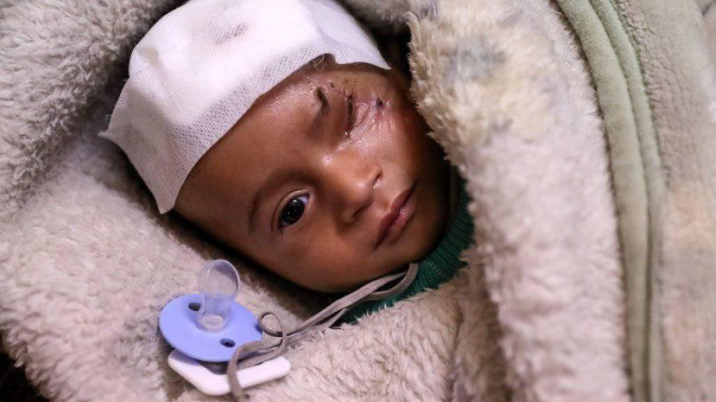 Das Baby Karim verlor bei einem Luftangriff ein Auge und wurde nun zum Symbol für die Tragödie in Syrien.
