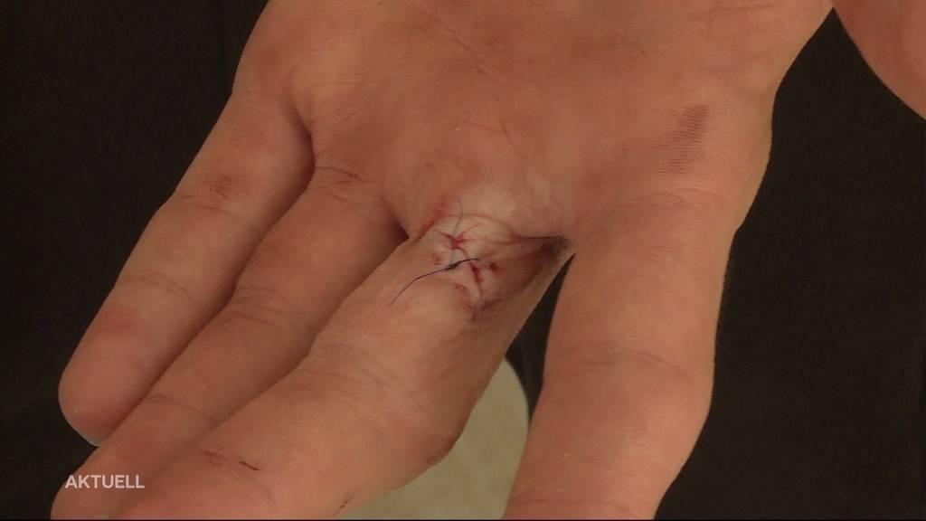 15-Jähriger in Schöftland von zwei Jugendlichen mit Messer verletzt