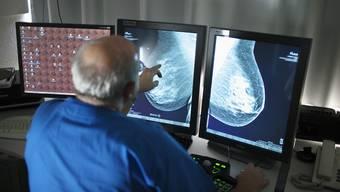 Ein Arzt sieht sich ein Brust-Screening an.