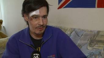 Beat Kellenberger nach seinem schweren Elektro-Scooter Unfall.