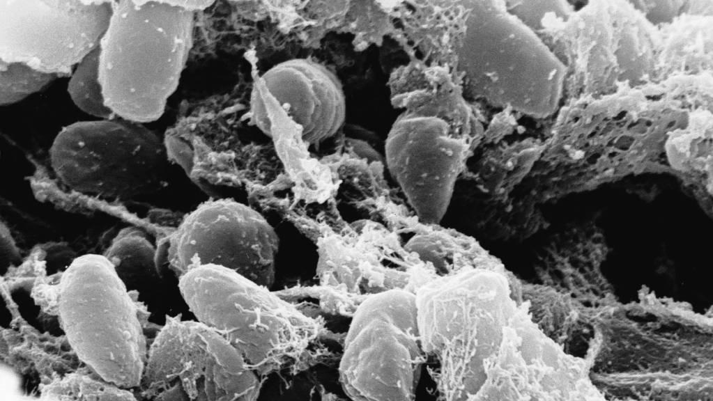 Eine Elektronenmikroskopaufnahme des Pesterregers Yersinia pestis. Forschende haben rekonstruiert, wie das Bakterium im 17. Jahrhundert in Venedig grassierte. (Archivbild)