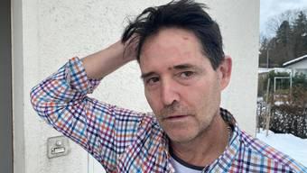 André Geissmann (Wohler Einwohnerrat der SVP) zeigt seinen verletzten Kopf am Tag danach, nach dem er vor der Post verprügelt worden war.