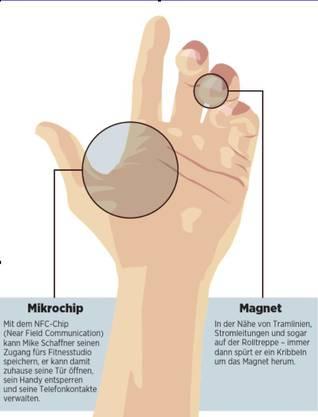 In de Fingerkuppe und der Handfläche liess sich Mike Schaffner die Chips implantieren.