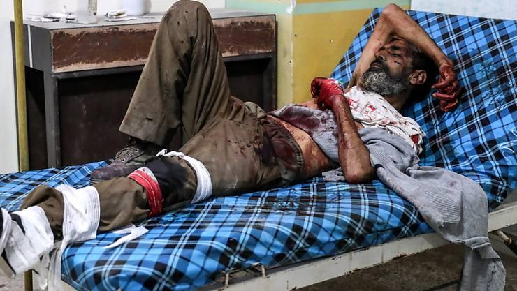 Eines der zahlreichen Opfer der Luftangriffe auf Ost-Ghouta während der vergangenen Tage liegt schwerverletzt im Spital (Aufnahme vom 26. November).