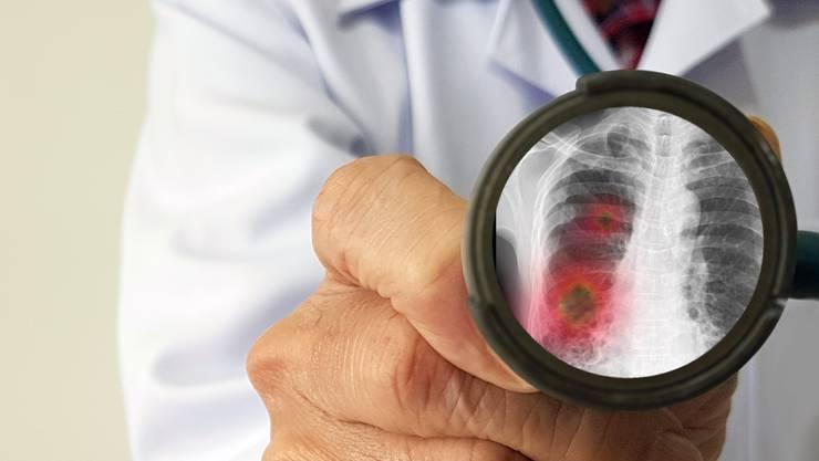 Das Coronavirus befällt neben der Lunge auch andere Organe.