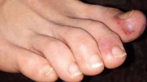 Hautverfärbungen an den Zehen erinnern an Erfrierungen.