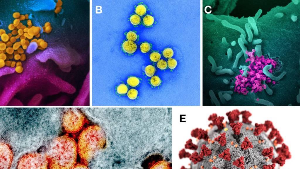 Verschiedene Darstellungen des Coronavirus Sars-CoV-2: Je «schöner» das Bild des Virus, desto harmloser wird der Erreger empfunden, wie aus einer Studie hervorgeht.