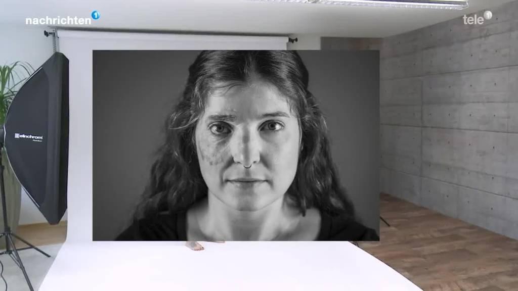 Fotoprojekt mit Menschen mit Entstellung