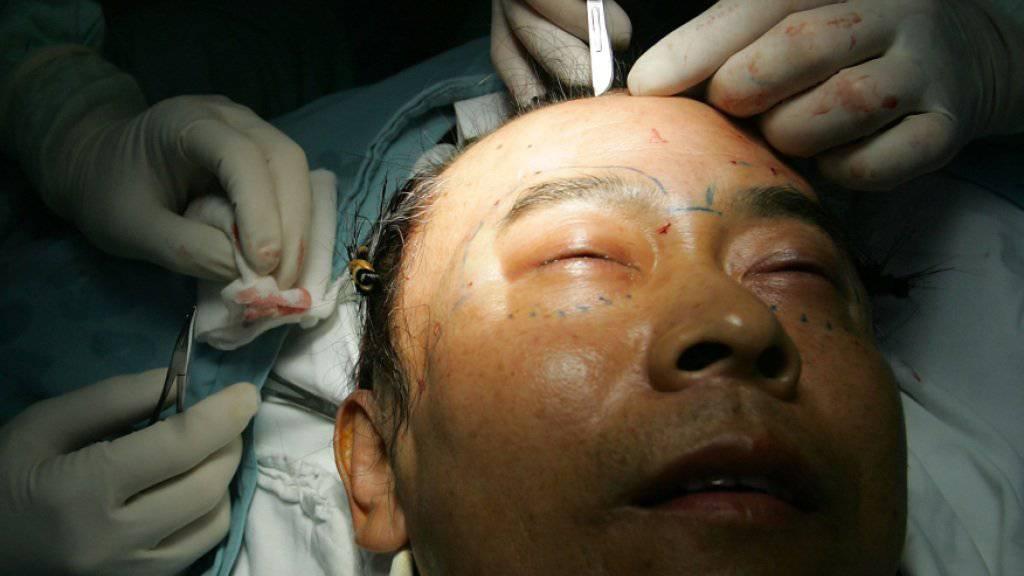 Streckung der Augenlider, Fettabsaugen und Gynäkomastie: Diese chirurgischen Eingriffe verlangen brasilianische Männer am häufigsten. (Symbolbild)